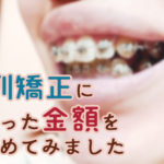 歯列矯正にかかった金額をまとめてみました。