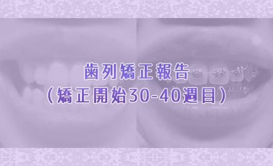 30代から始めるメタルブラケット歯列矯正体験談レポート【矯正開始30-40週目】