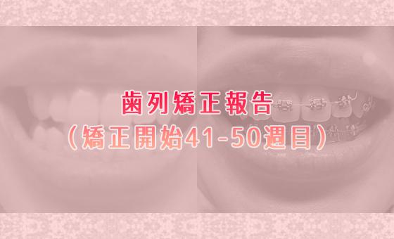 30代から始めるメタルブラケット歯列矯正体験談レポート【矯正開始41-50週目】